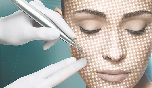 Forever young: BABOR Micro Needling (Wert € 130,-)